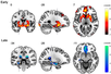 Neural substrates of de novo motor skill learning
