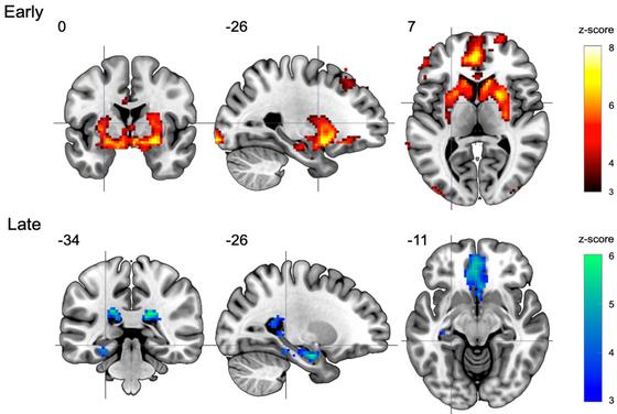Neural substrates of de novo motor skill learning