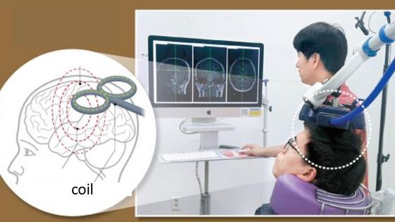 Neuromodulation of learning & memory using non-invasive stimulation