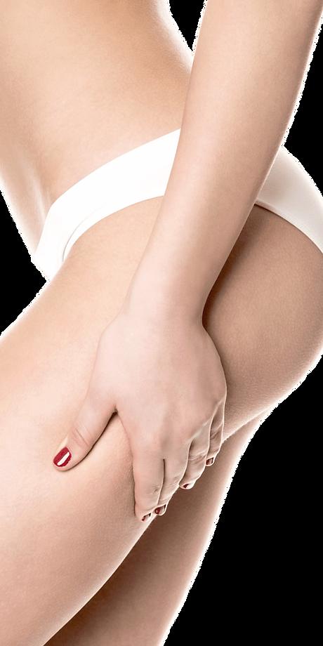 donna-cellulite-e1541513837705.png