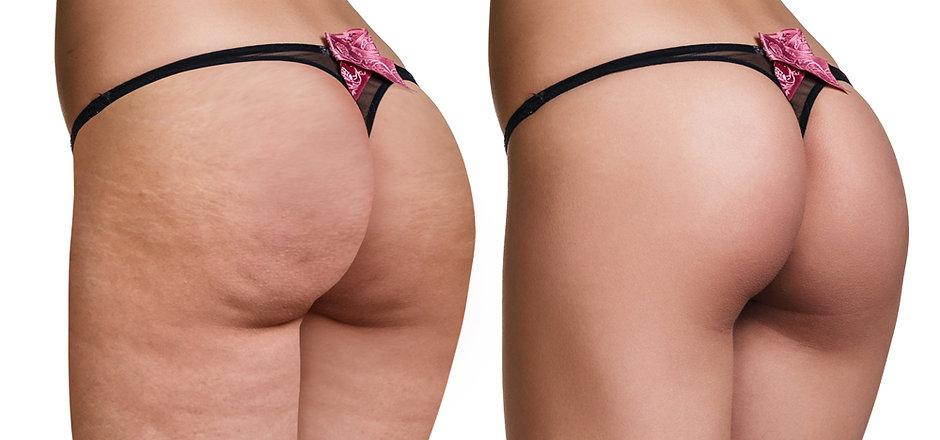 Cellulite (3).jpg