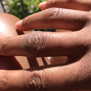 How Does Fingercombing Affect Your Hand Eczema?