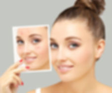 Permanent-Treatments-For-Acne.jpg