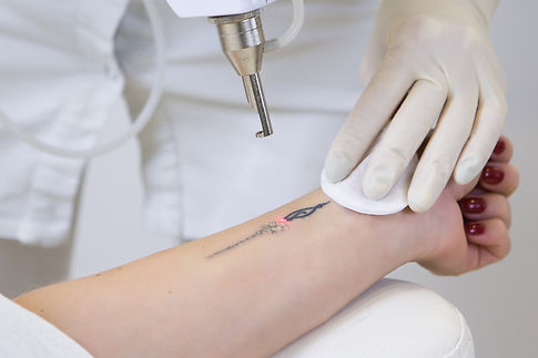 how-does-laser-tattoo-removal-work.jpeg
