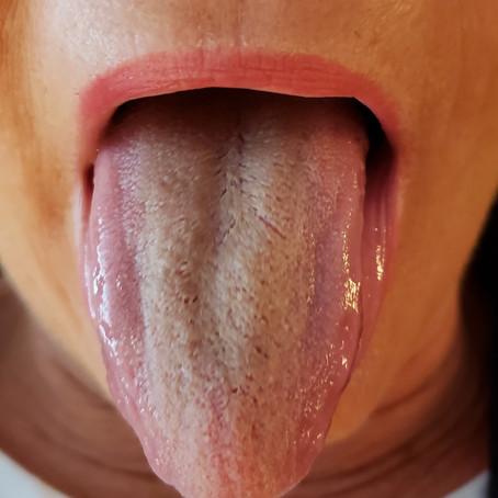 Tongue Diagnosis