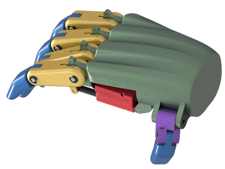 Augment Bionics
