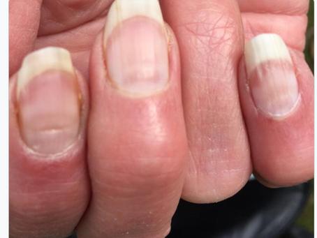 COVID Nails