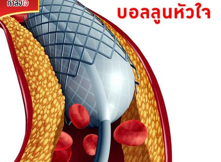 การทำบอลลูนหัวใจ (percutaneous transluminal coronary Angioplasty :PTCA)