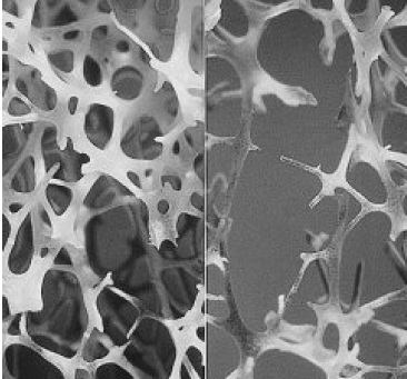 Cryotherapy Applications in Preventing and Treating Osteoporosis