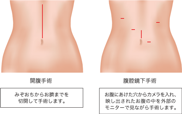 胃_07.png