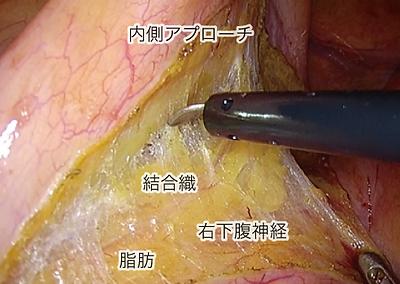 大腸疾患について_01.png