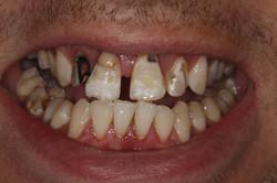 Smile rehabilitation