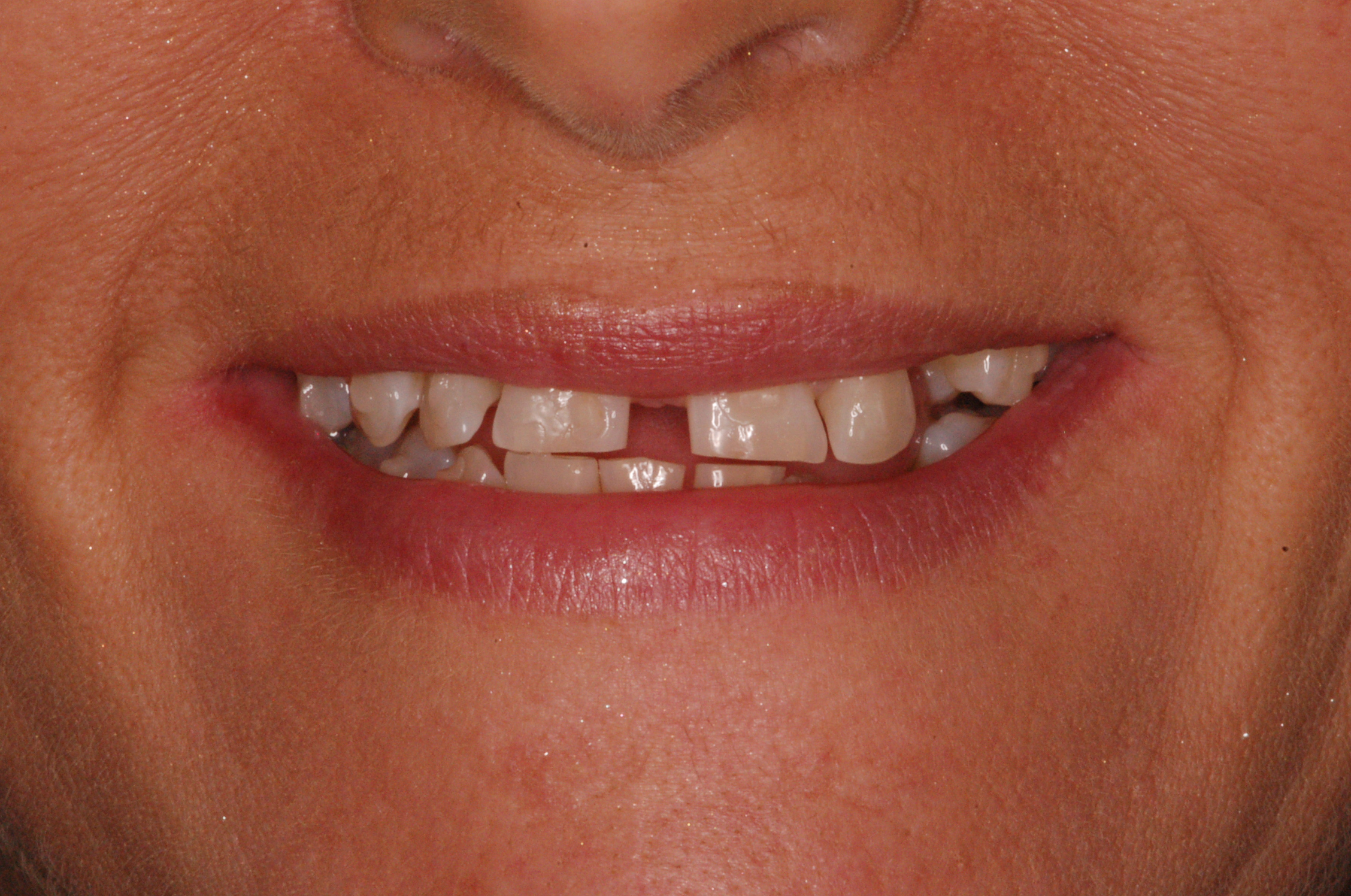 Smiledesign with orthodontics