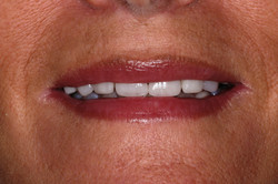 Smiledesign with orthodontics