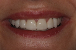 Smiledesign with implants