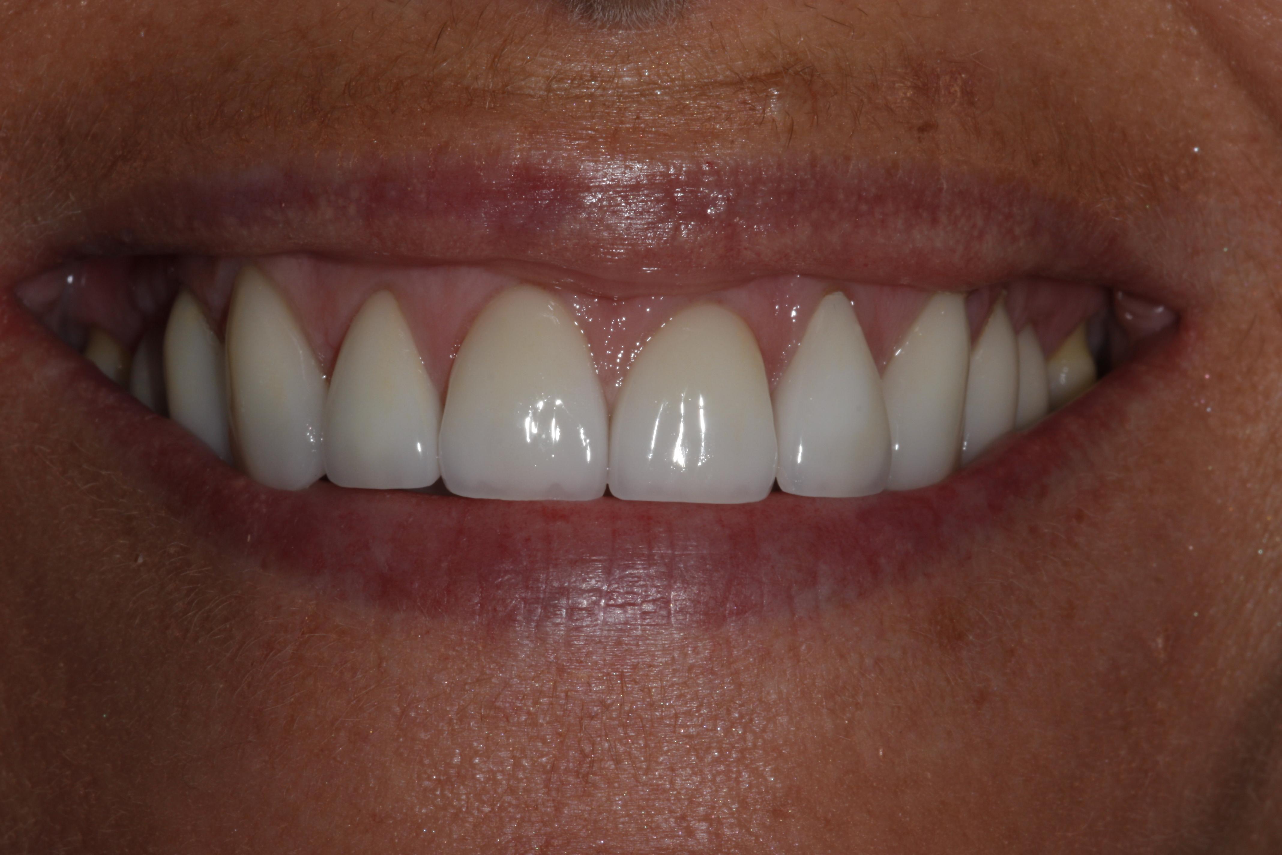 Smiledesign with veneers