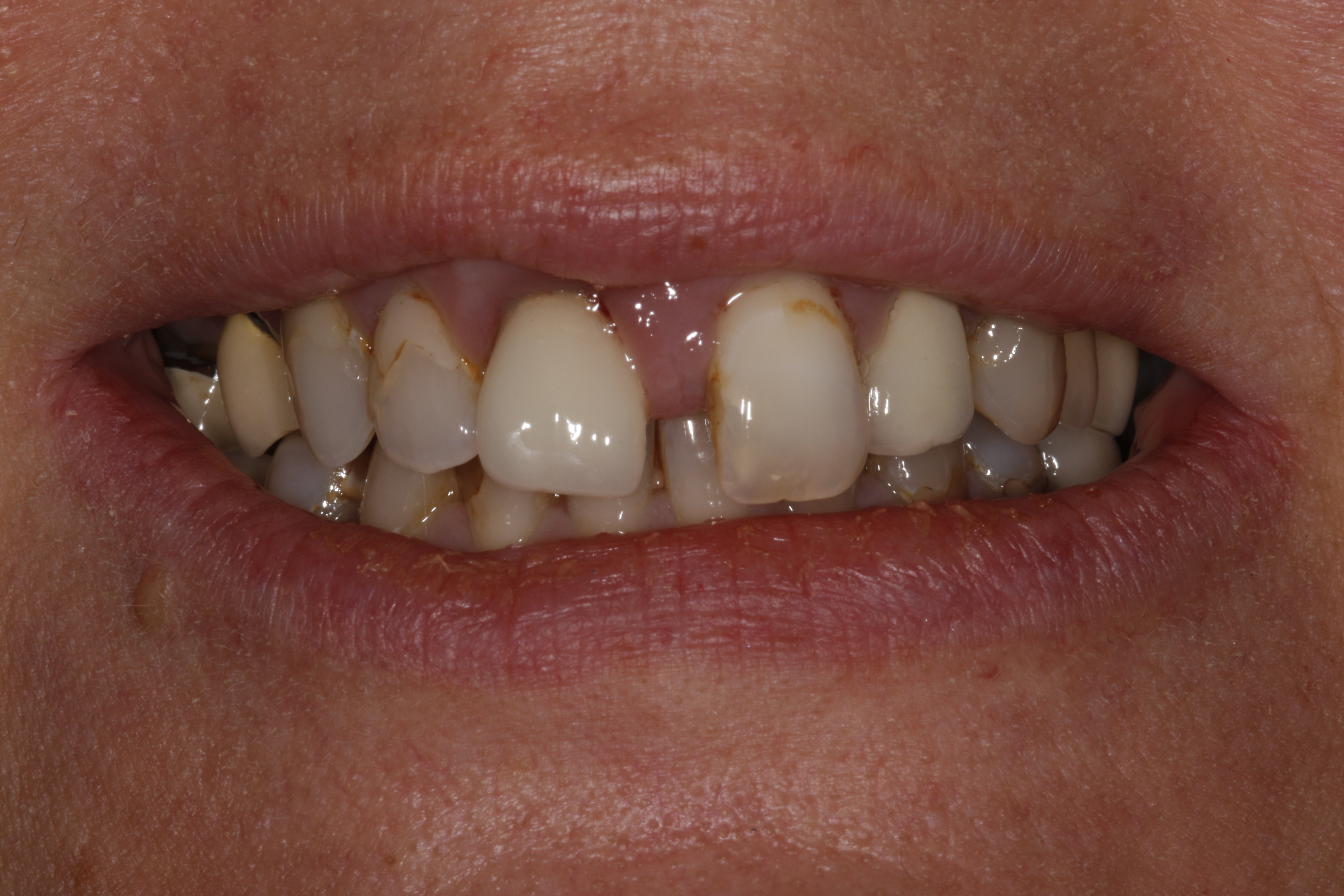 Smiledesign with veneers and crowns