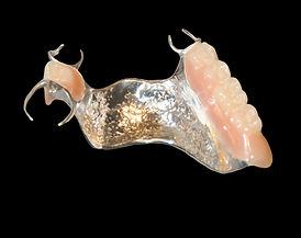 prothèse partielle métallique ou acrylique