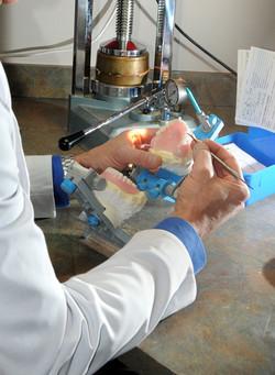 prothèse dentaire confection qualité