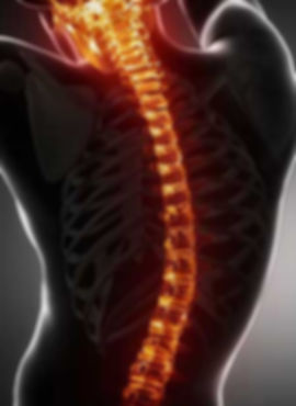 Scoliosis Treatmen and Pain Management Utah