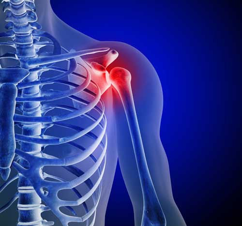 Best Complex Regional Pain Syndrome Treatment