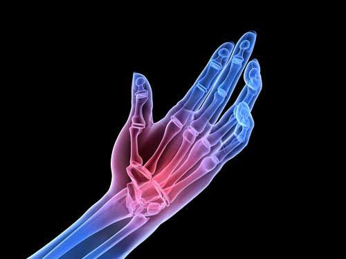 Arthritis Pain Treatment Salt Lake