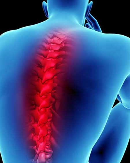 Prolapsed Disc and Back Pain Management