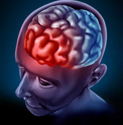What is Trigeminal Neuralgia and Treatments