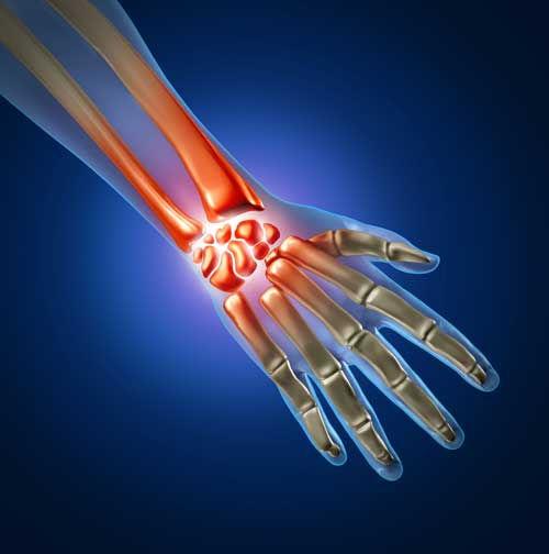 Carpal Tunne Pain Management SLC