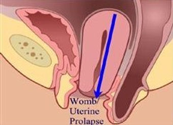 prolapse-uterine.jpg