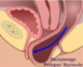 prolapse- Posterior wall.jpg
