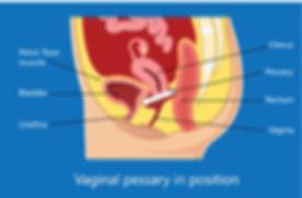 Vaginal pessary.jpg