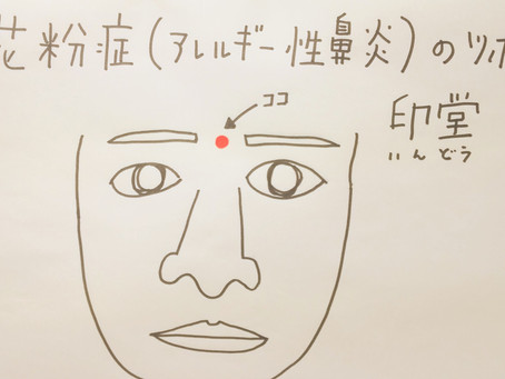 花粉症(アレルギー性鼻炎)のツボ  印堂  /大阪府八尾市/鍼灸ゆーせん