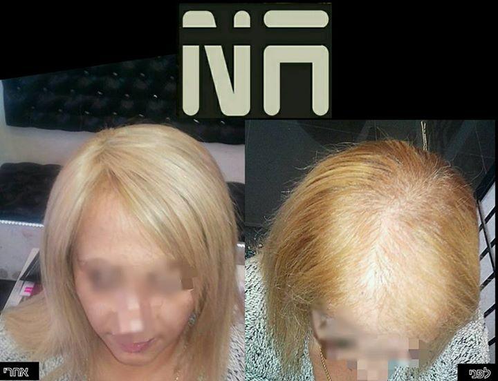 NA Hair _  www.nahairclinic