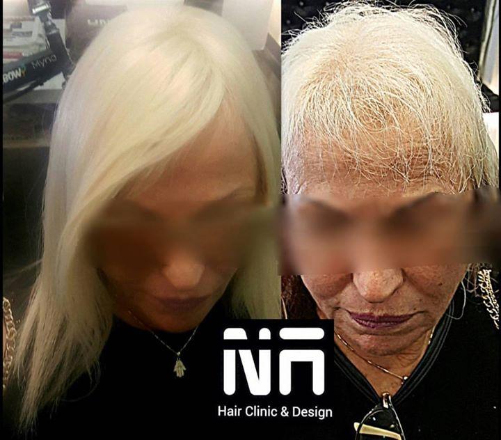 נשים רבות סובלות מדלילות שיער, התקרחות ב