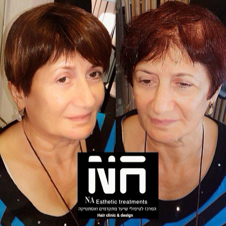 נשים רבות סובלות מדלילות שיער, _חלק מהגו
