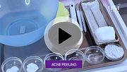 Acne Peeling.jpg