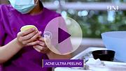 Acne Ultra Peeling.png