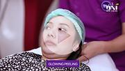 Glowing Peeling.png