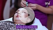 Natural Black Organic Peel.png