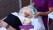 Melasma Electro.png