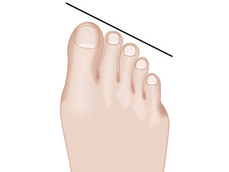 Types of Toes and What They Reveal About Your Personality