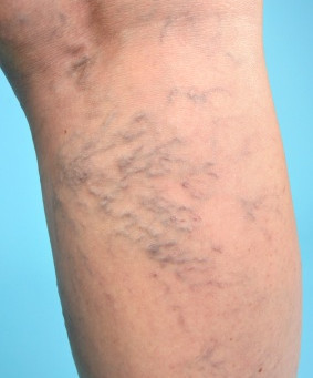 Varicose Veins : Not Just a Cosmetic Issue
