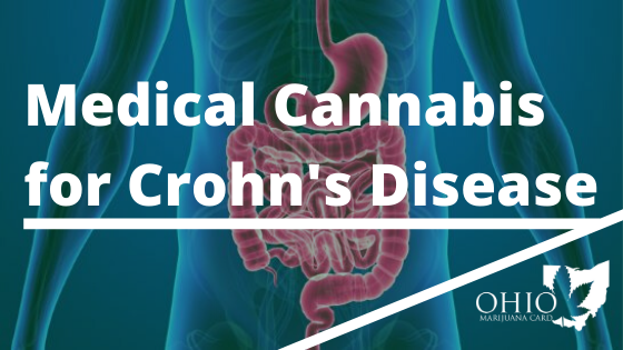 Medical Cannabis for Crohn's Disease in Ohio