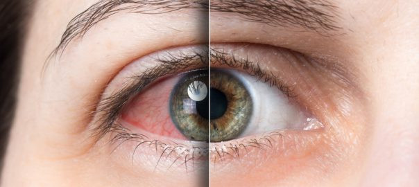 Red Eyes from Using Cannabis