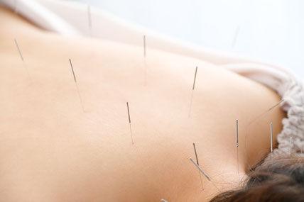 大人鍼灸治療60分
