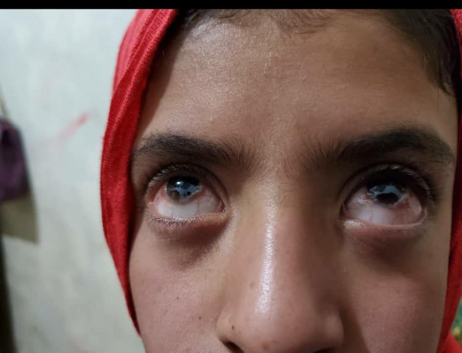 Aman is loosing her sight after her father threw a concrete block at her.
