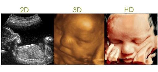 Femsalud/2D, 3D, HD