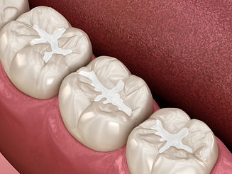 fissure sealant Hampton Dental Centre