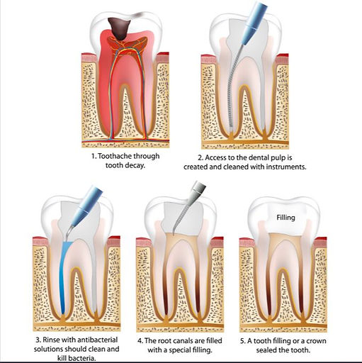 Root Canal Treatment Hampton Dental Centre